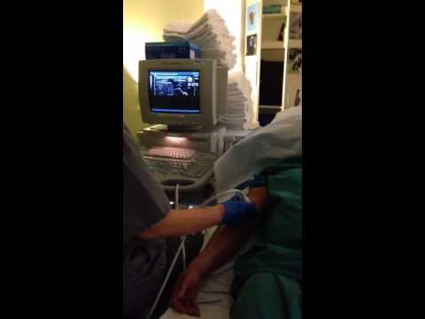ภูมิภาค Chelyabinsk ผ่าตัดหลอดเลือดโรงพยาบาล