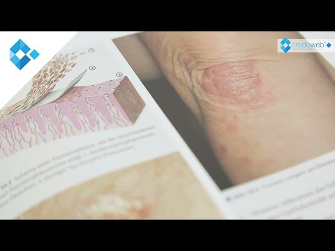 Was ist infektiöses Ekzem