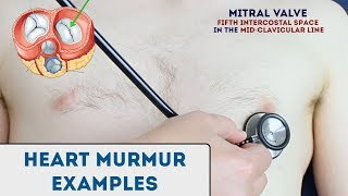 Heart murmur sounds (cardiac auscultation sounds)