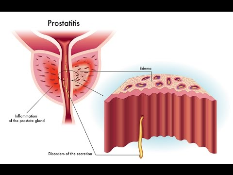 Cranberries treatment of prostatitis