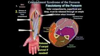 Compartment Syndrome Of The Forearm - Everything You Need To Know - Dr. Nabil Ebraheim