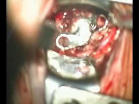 Giunto maxillo-facciale per trattare