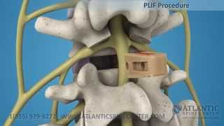 Posterior Lumbar Interbody Fusion Overview