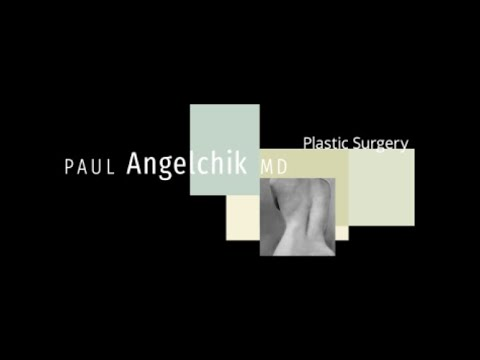 Dr. plastic breast enlargement