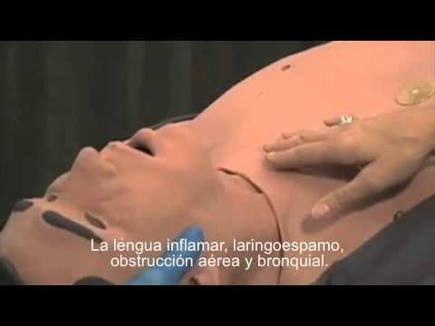 Tratamiento de la hipertensión lábil
