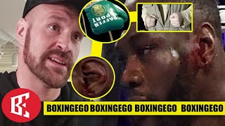 TYSON FURY GLOVEGATE 2.0 OLD MEDIA WANTS OUT THE CAR LIKE TREY