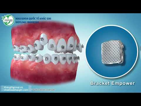 Niềng Răng đẹp tại Nha khoa quốc tế Khắc Ghi