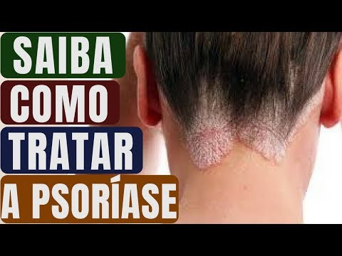 Fórum de sintomas de neurodermatitis