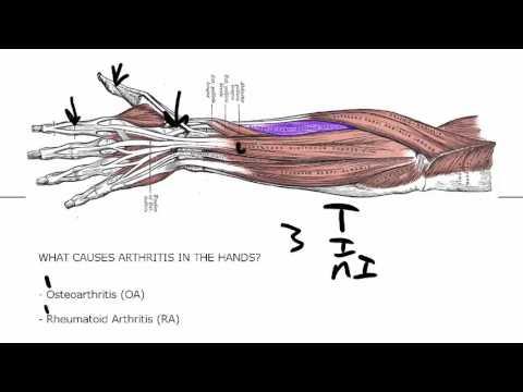 Zu welchem Arzt mit Rückenschmerzen gehen