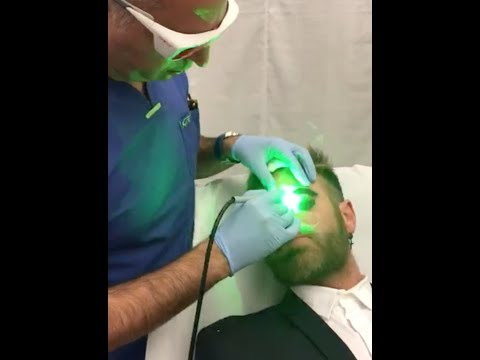 Video massage facial wrinkles