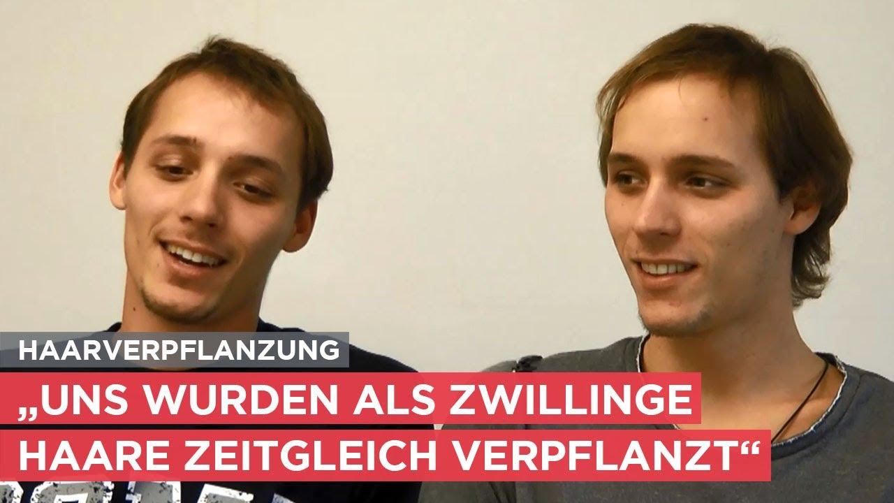 Haartransplantation bei Zwillingen aus Südtirol - das Interview