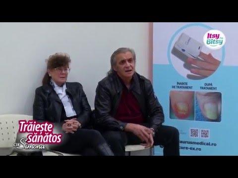 Cum să alergi cu artroza genunchiului