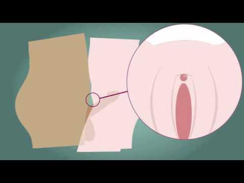 Hogyan kell kezelni a BPH otthon
