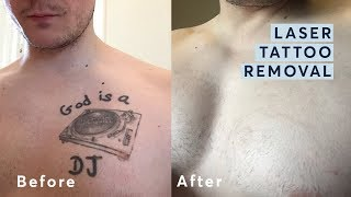 ᐅ Descargar Mp3 De Does It Work Tattoo Laser Removal 2018 2018
