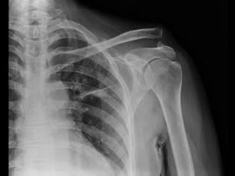 Artroza articulațiilor periei 2 grade