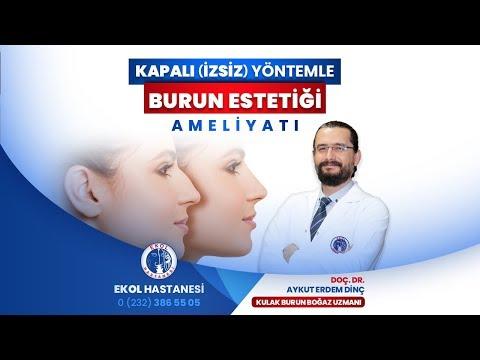 Kapalı (İzsiz) Yöntemle Burun Estetiği - Doç. Dr. Aykut Erdem Dinç - İzmir Ekol Hastanesi