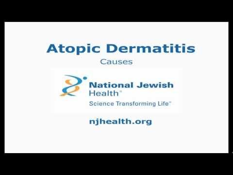 Atopitchesky la dermatite la liste des produits