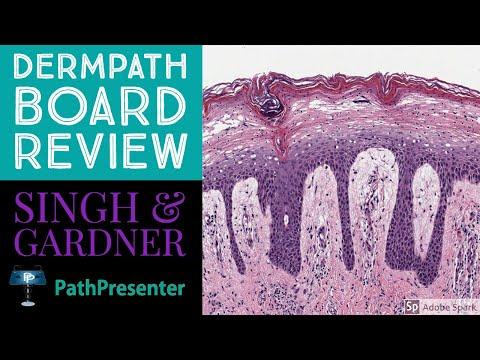 Laryngeal inverted papilloma