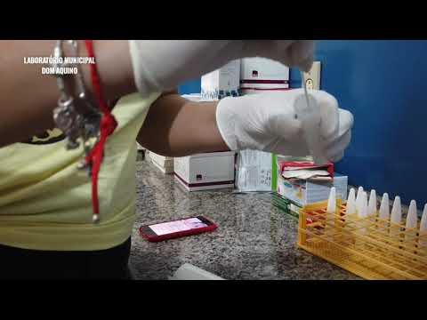 Laboratório Municipal além de testes rápidos de Covid-19, realiza mais de 30 exames em Dom Aquino