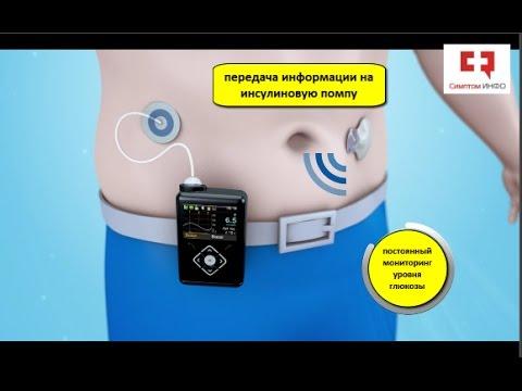 Лечение сахарного диабета 2 типа по системе
