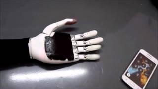Прототип протеза предплечья Stradivary v3.1