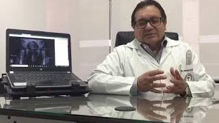 DISPLASIA DE CADERA - Heyzer Orlando Suárez Balseca
