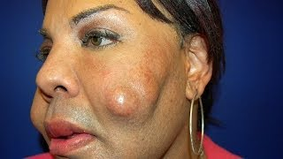 Cosmetic Surgery Disaster: Woman Dubbed 'Cement Face' Given New Lease Of Life