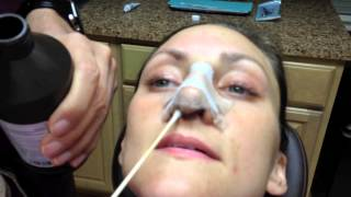 Rhinoplasty Recovery: (days 1 through 7) Nose Cleaning Instructions – Dr. Naderi