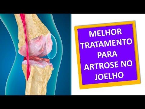 Debolezza nelle gambe e vertigini osteocondrosi cervicale