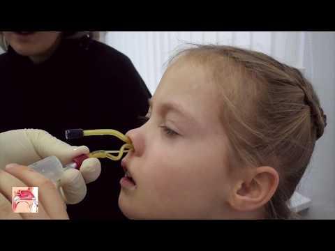 Geluri de unguent pentru osteochondroza coloanei vertebrale