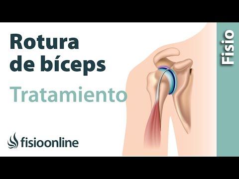 Lo que los huesos de la articulación del codo está formado