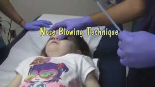 Nasal Foreign Body Removal Techniques