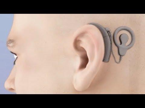 Si es posible aceptando aumentar las hormonas el pecho