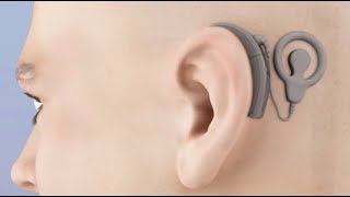 Cochlear Implant Animation