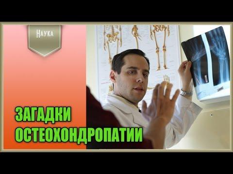 Диагностика и лечение остеохондропатии у детей