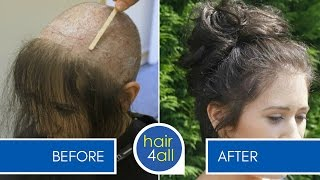 How to Apply (Attach) a Non-Surgical Hair Replacement System for Women with Rhianna - Part 3