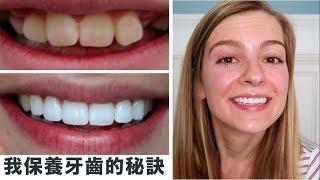 【如何擁有白牙✨】美國牙科保險竟然這麼貴 !? 美國人為什麼這麼重視牙齒的保養?