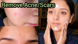 Remove Acne Marks, Scars & Redness in 1 Week - Get Clear Skin Overnight