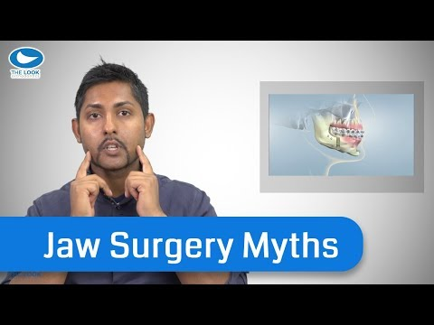 An Orthodontist's experiences with Jaw Surgery