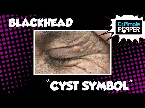 Youtube popping zits dating cysts