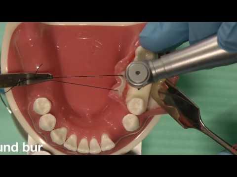Simple Straumann STL implant