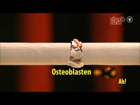 Knie-Arthroskopie Wie lange Betriebszeit