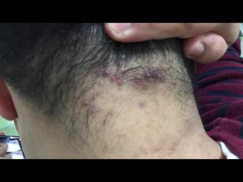 Народное средство лечения суставов плечей