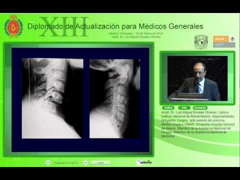 Síntomas de la enfermedad degenerativa del disco de la columna lumbar