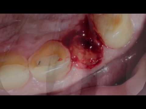 История одного зуба