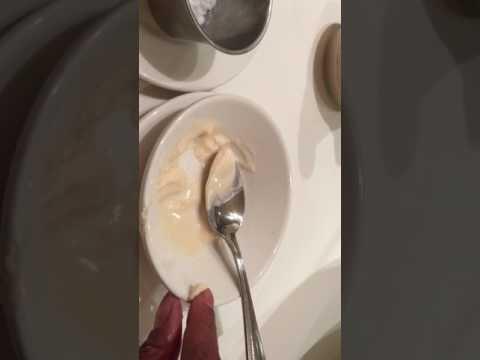 Îndepărtarea papiloamelor verucilor genitale în locuri intime