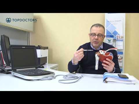 Osteoartrite del ginocchio di 1 grado può essere curata