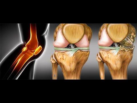 La rotura del ligamento cruzado de la rodilla