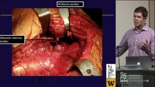 Kocher Langenbeck Approach for Acetabular Fractures - Michael Githens, MD
