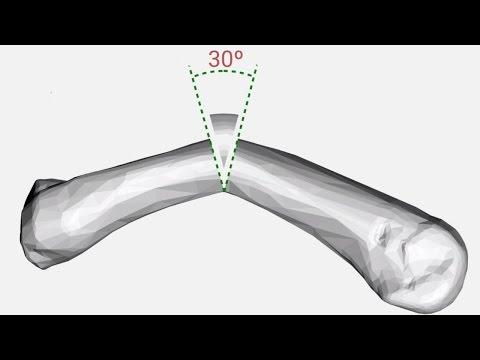 Artroza deformantă a tratamentului genunchilor